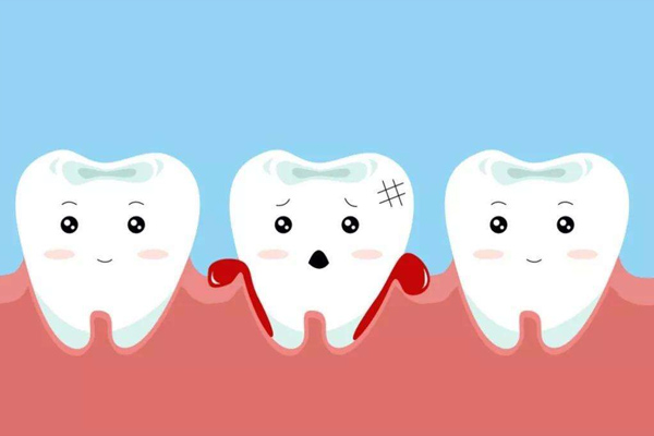 深龋伴牙髓充血