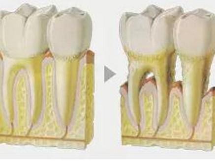 牙齿矫正会造成牙龈萎缩吗?