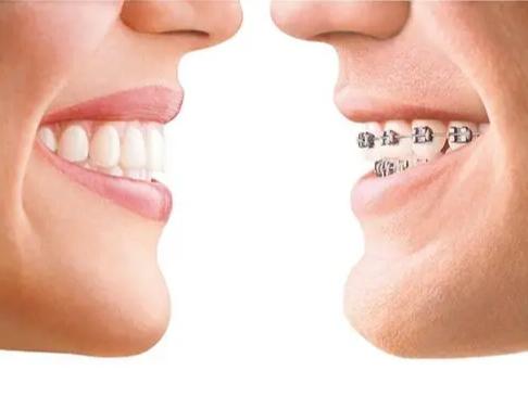 牙齿正畸的最佳年龄是多少岁