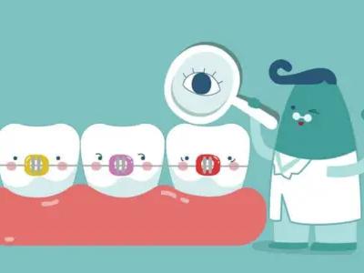 牙齿矫正一定要拔牙吗?高德口腔表示不一定