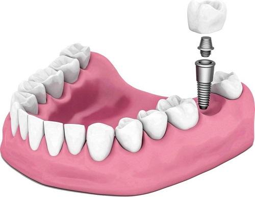 src=http___www.sy-dental.cn_wp-content_uploads_2019_12_timg-11.jpg&refer=http___www.sy-dental