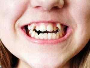 成都牙齿不齐导致哪些损害呢