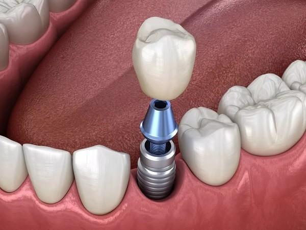 """""""种植牙""""凭什么成为牙齿缺失最好的修复方式?"""