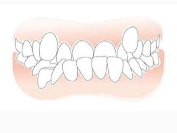 虎牙牙齿矫正价格