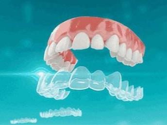 牙齿纠正后会对口腔发生什么影响