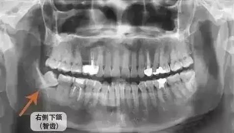 全口X光曲断片