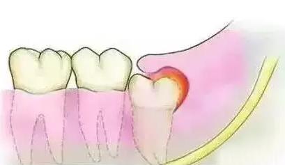 智齿萌发导致牙龈红肿发炎