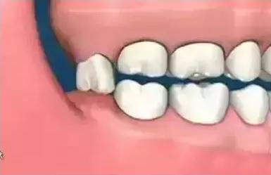 当智齿没有对咬牙时
