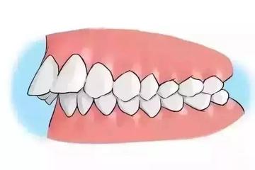 成都龅牙矫正