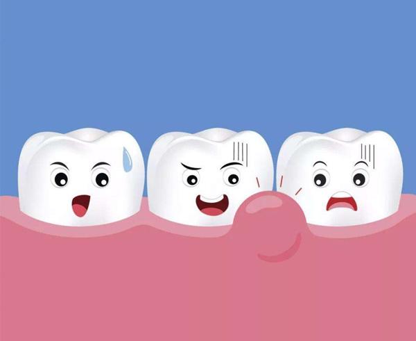 慢性牙髓炎