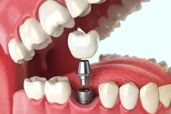 传统种植牙技术