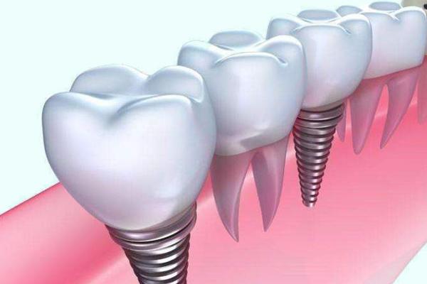 即拔即种的即刻种植牙技术