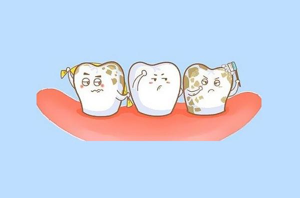 轻中度的四环素牙、氟斑牙