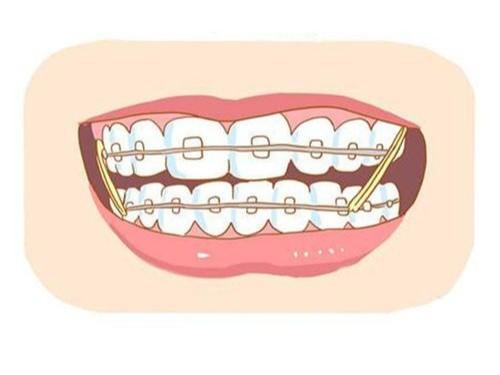 成人龅牙矫正