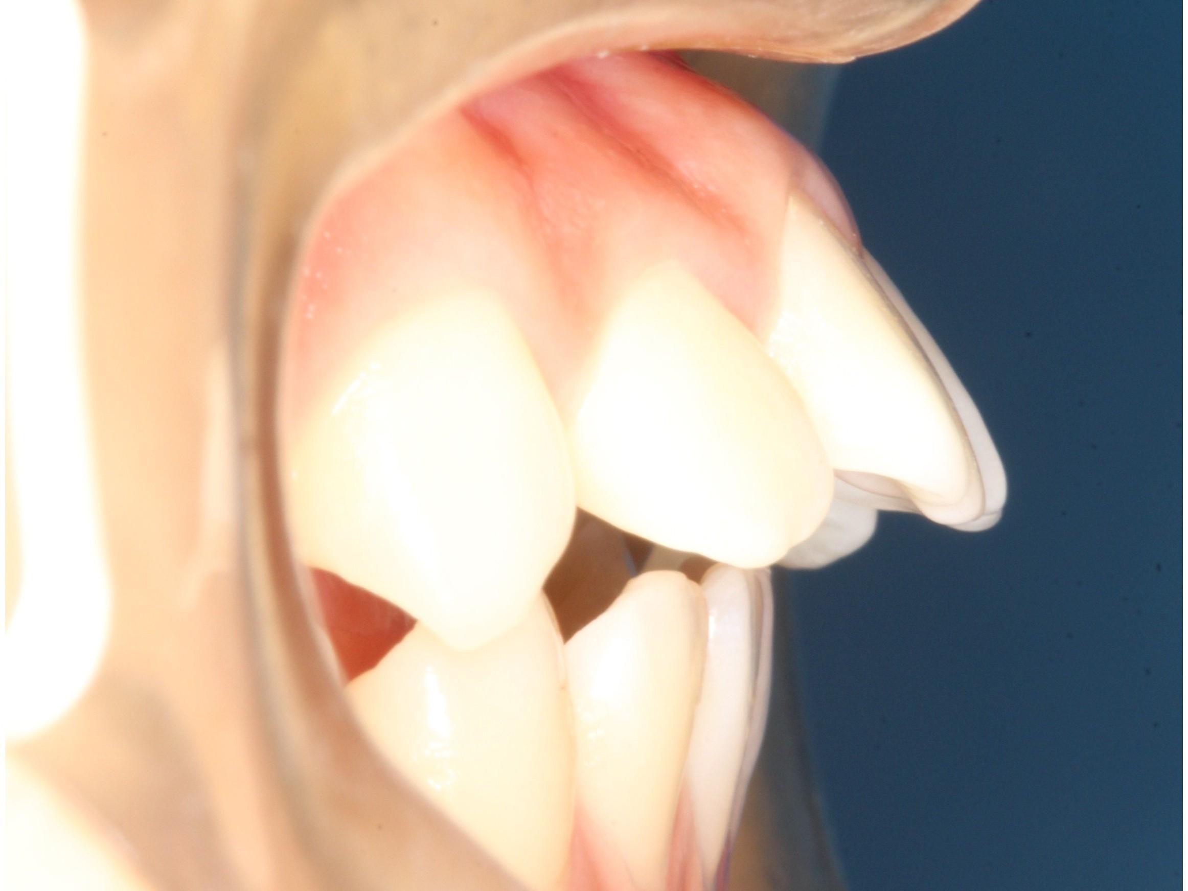 龅牙的危害有哪些?
