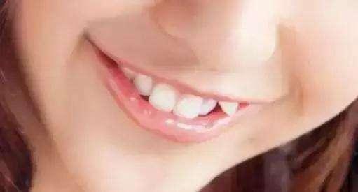高德口腔虎牙牙齿矫正