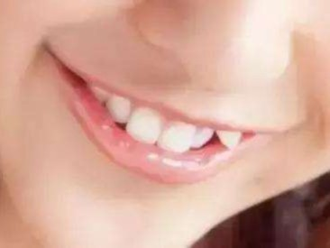 矫正一颗虎牙需要多少钱