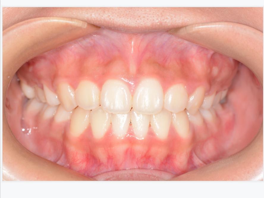 高德口腔解读:成人隐形牙齿矫正的方法和过程